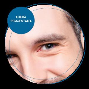 Ojera pigmentada