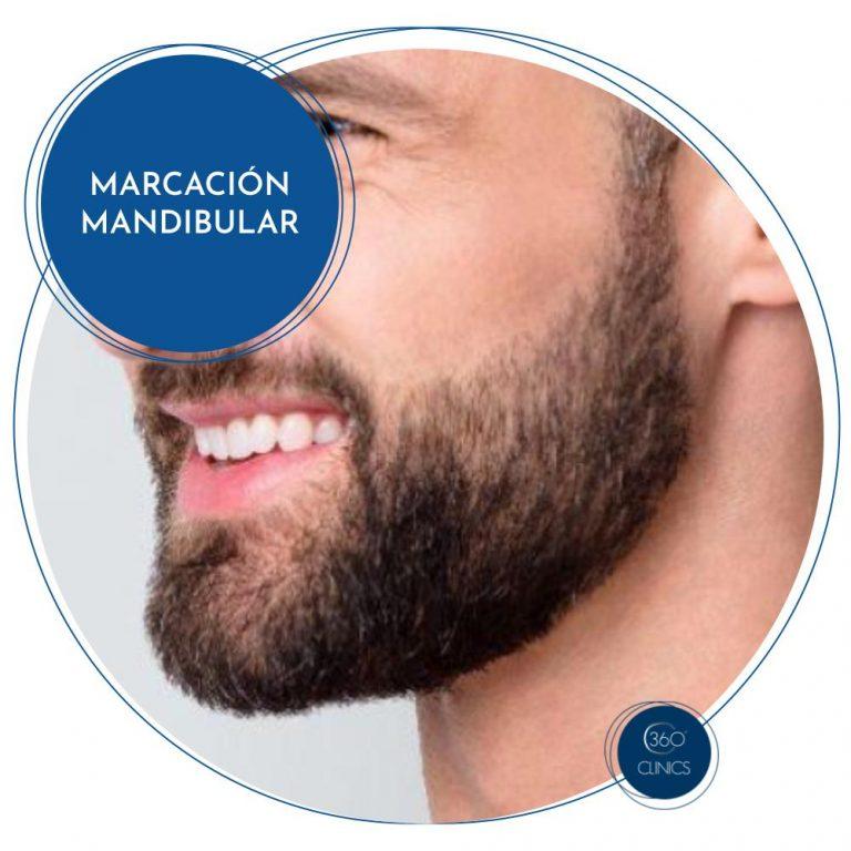Marcación mandibular 360Clinics