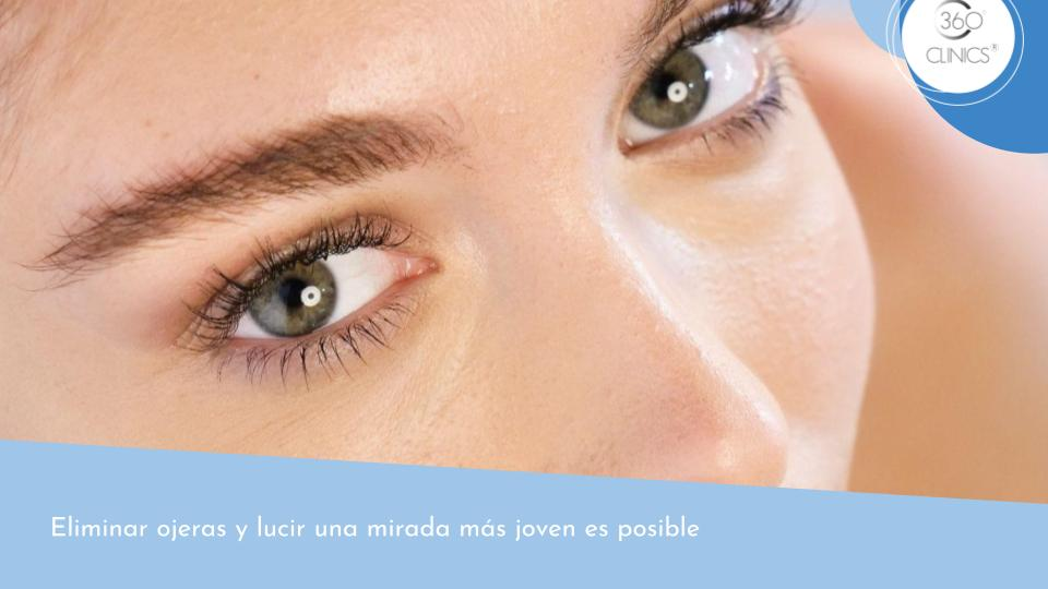 Eliminar ojeras y lucir una mirada más joven
