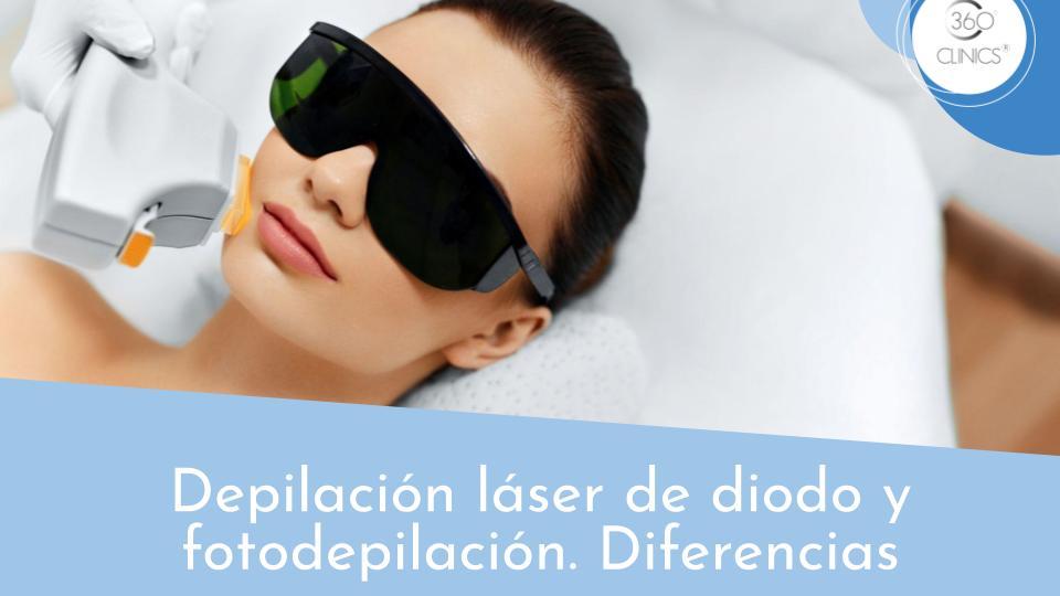 Diferencias entre depilación láser y fotodepilación