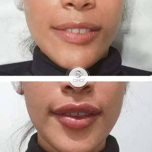 Aumento de labios con ácido hialurónico reticulado