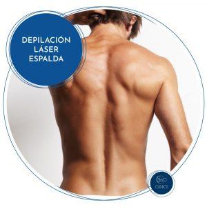 Depilación láser en espalda