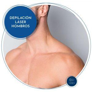 Depilación láser en hombros
