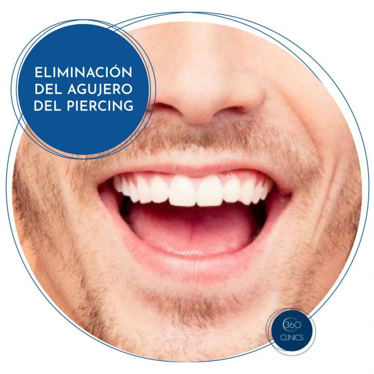 Eliminación agujero piercing