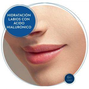 Hidatación y perfilado de labios