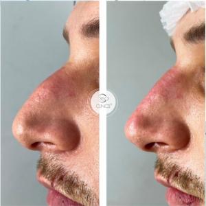 Rinomodelación con ácido hialurónico antes y después