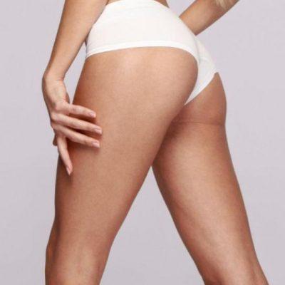Eliminar celulitis de glúteos y piernas
