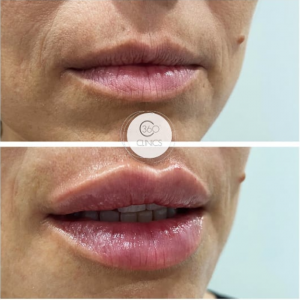 ¿Cómo quedan los labios con aumento de labios antes y después?