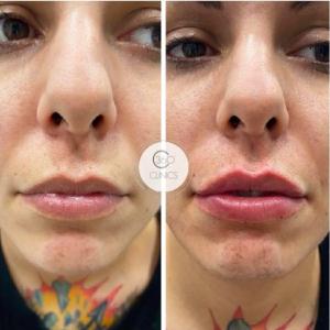 Beneficios del aumento de labios antes y después