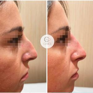 Rinoplastia sin cirugías. Rinomodelación antes y después